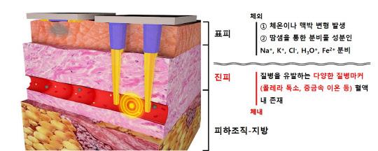 채혈 없이 질병진단 `피부 침습형 바이오 센서`